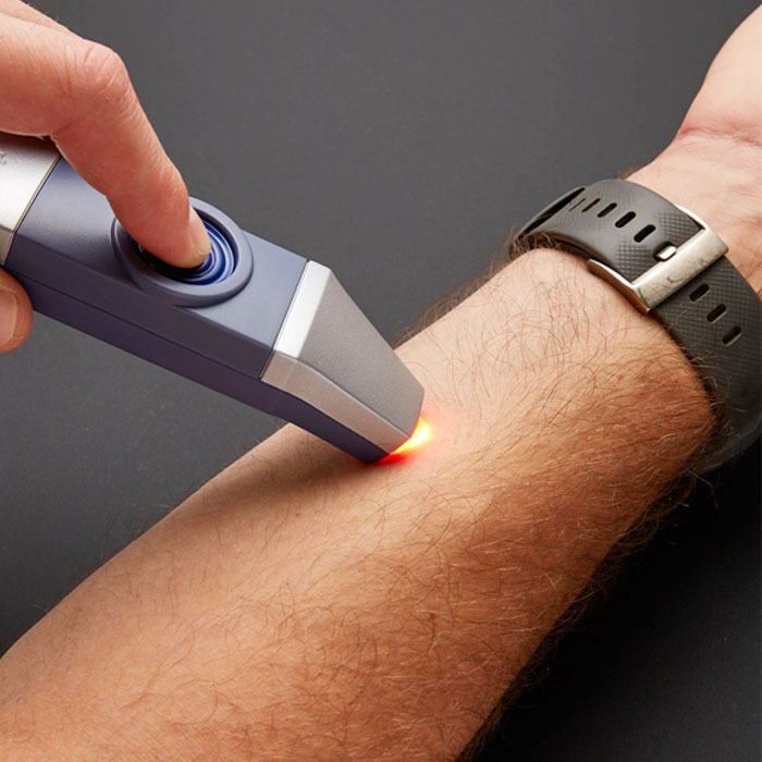 therapik mosquito bite pain relief device