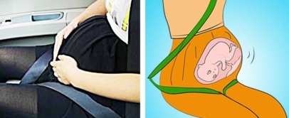 This Pregnancy Car Seat Belt Protects Your Unborn Child | ZUWIT Bump Belt